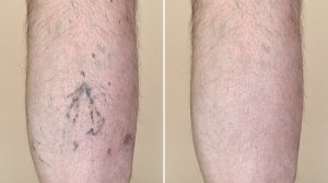 Leg of a man with capillaries before and after medical treatment